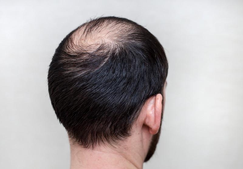 髪が薄くなる